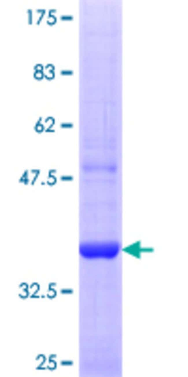 Abnova™Human SEC63 Partial ORF (NP_009145.1, 631 a.a. - 728 a.a.) Recombinant Protein with GST-tag at N-terminal 10μg Abnova™Human SEC63 Partial ORF (NP_009145.1, 631 a.a. - 728 a.a.) Recombinant Protein with GST-tag at N-terminal