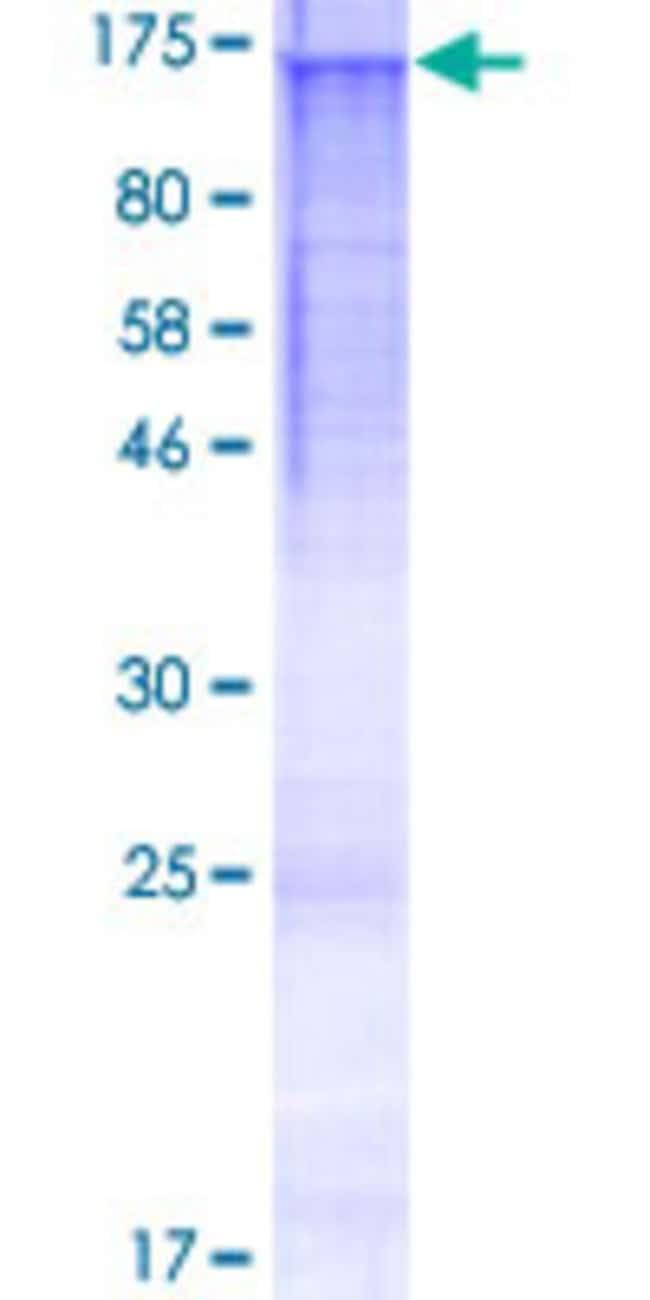 AbnovaHuman HPS5 Full-length ORF (AAH33640.1, 1 a.a. - 1015 a.a.) Recombinant