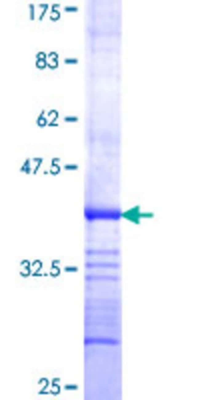 AbnovaHuman PDCD10 Partial ORF (NP_009148, 103 a.a. - 212 a.a.) Recombinant
