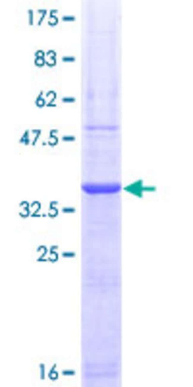 AbnovaHuman PADI2 Partial ORF (NP_003008, 1 a.a. - 108 a.a.) Recombinant
