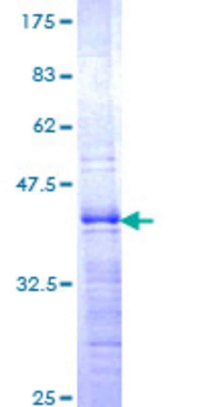 AbnovaHuman ZHX1 Partial ORF (NP_009153, 731 a.a. - 829 a.a.) Recombinant