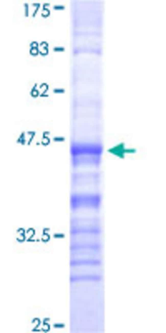 AbnovaHuman GPR Partial ORF (NP_009154, 416 a.a. - 515 a.a.) Recombinant
