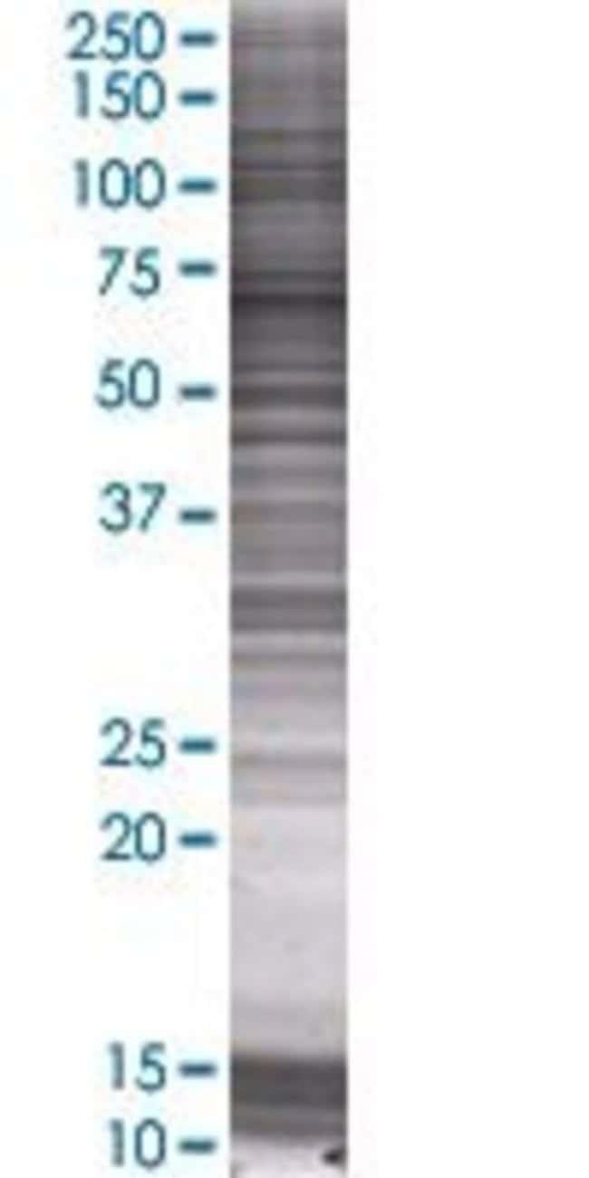 AbnovaPACSIN2 293T Cell Transient Overexpression Lysate (Denatured) 100μL:Protein