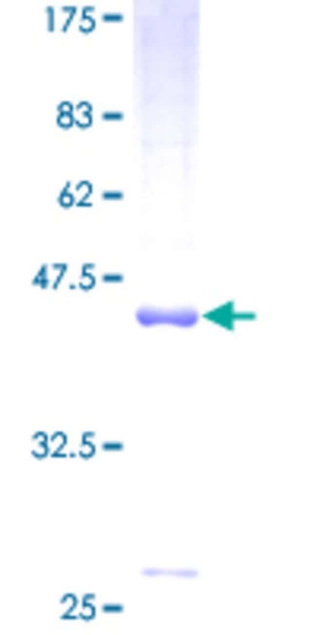 AbnovaHuman DCTN3 Full-length ORF (AAH00319, 1 a.a. - 176 a.a.) Recombinant