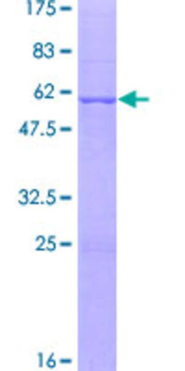 AbnovaHuman SNF8 Full-length ORF (NP_009172.2, 1 a.a. - 258 a.a.) Recombinant