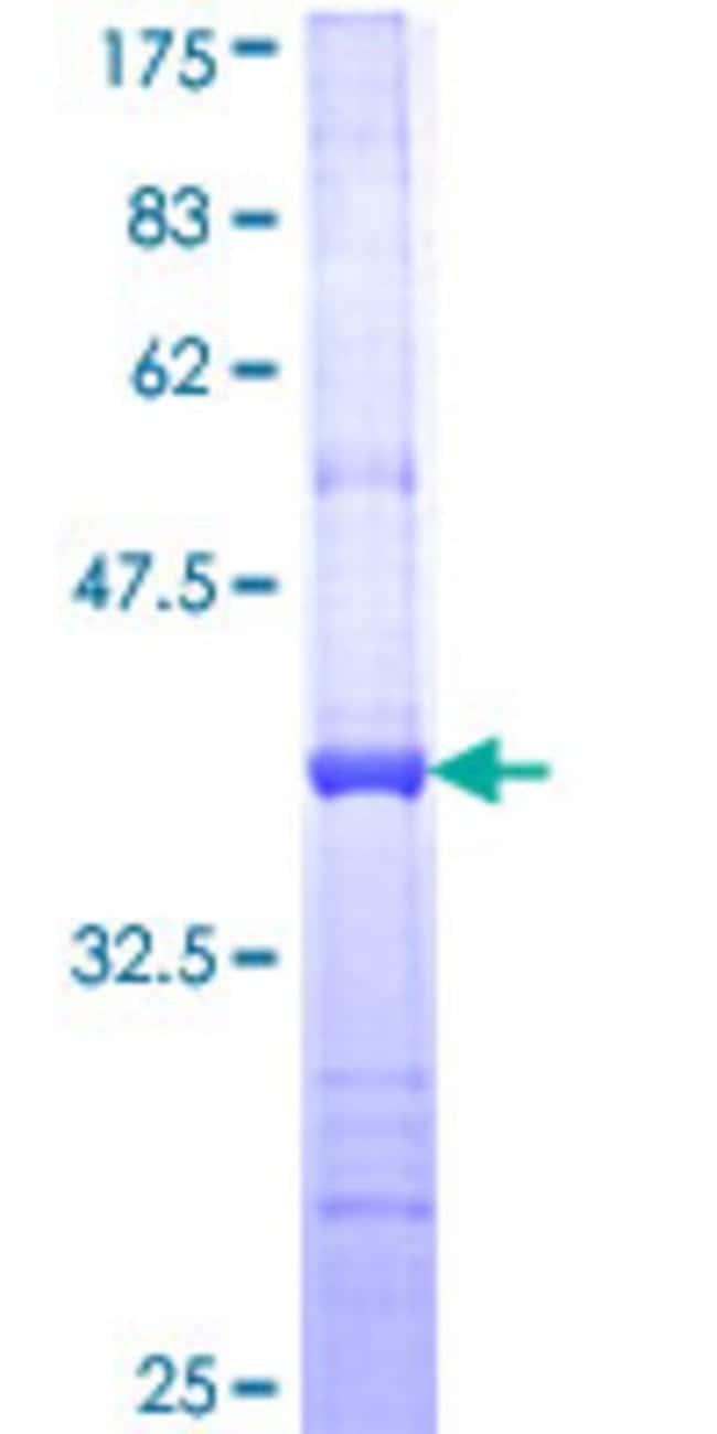 AbnovaHuman SNF8 Partial ORF (NP_009172, 23 a.a. - 122 a.a.) Recombinant