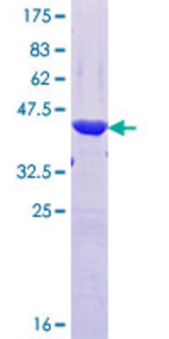 AbnovaHuman PRR4 Partial ORF (NP_009175.1, 17 a.a. - 116 a.a.) Recombinant