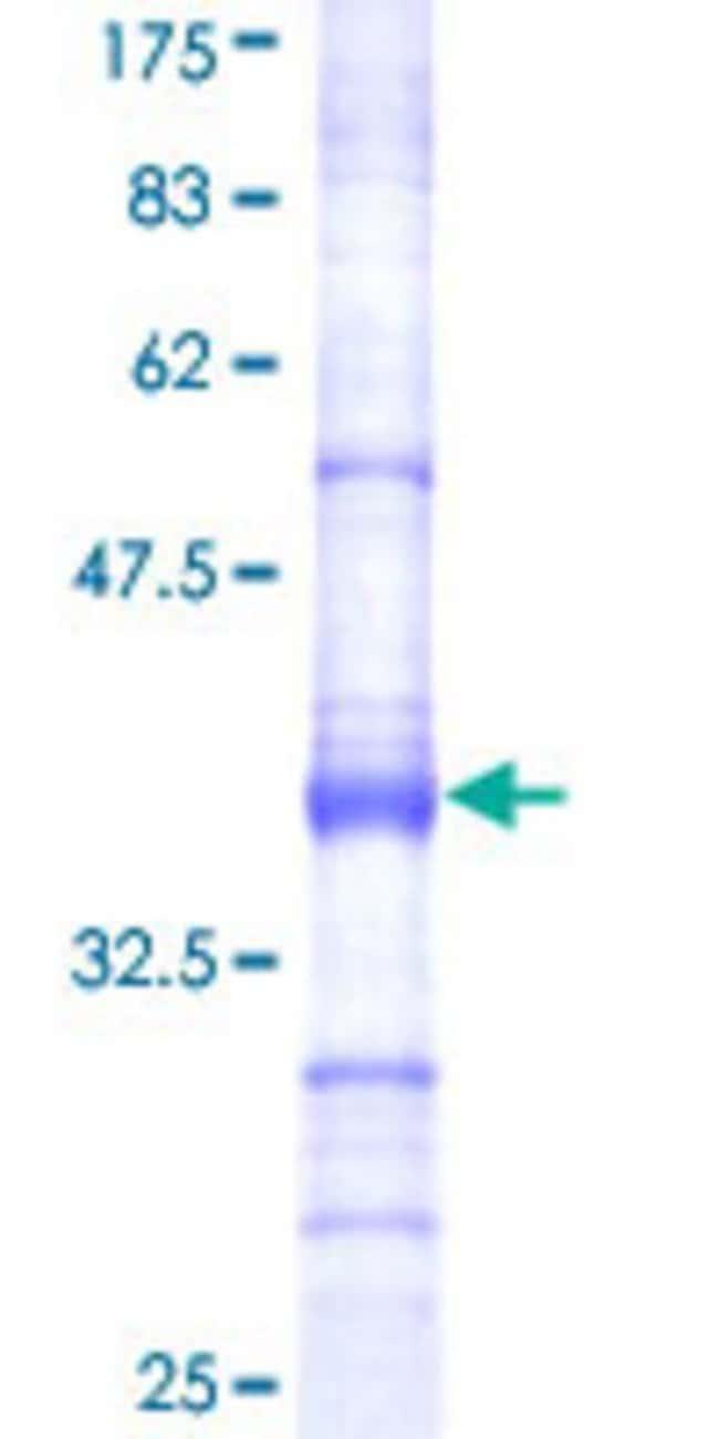 AbnovaHuman USP18 Partial ORF (NP_059110, 273 a.a. - 372 a.a.) Recombinant