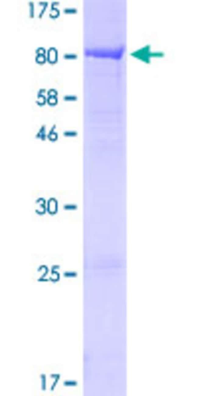 AbnovaHuman KLHL2 Full-length ORF (NP_009177.2, 1 a.a. - 593 a.a.) Recombinant