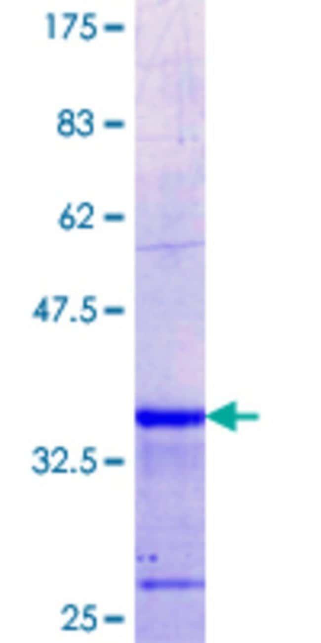 AbnovaHuman KLHL2 Partial ORF (NP_009177.2, 1 a.a. - 66 a.a.) Recombinant