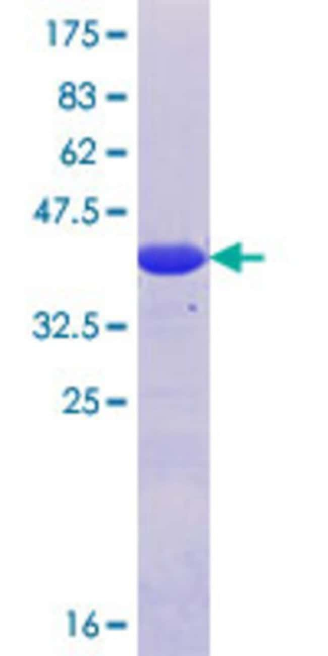 Abnova™Human AP1GBP1 Partial ORF (NP_009178.3, 456 a.a. - 555 a.a.) Recombinant Protein with GST-tag at N-terminal 25μg Abnova™Human AP1GBP1 Partial ORF (NP_009178.3, 456 a.a. - 555 a.a.) Recombinant Protein with GST-tag at N-terminal