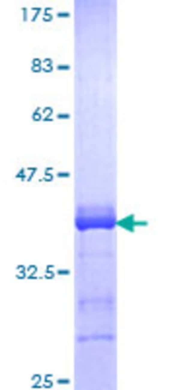 Abnova Human KLF12 Partial ORF (NP_009180, 1 a.a. - 90 a.a.) Recombinant