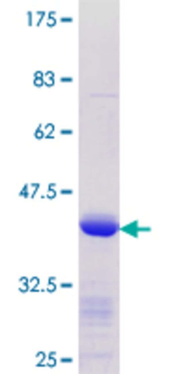 AbnovaHuman KLF8 Partial ORF (NP_009181.1, 1 a.a. - 98 a.a.) Recombinant