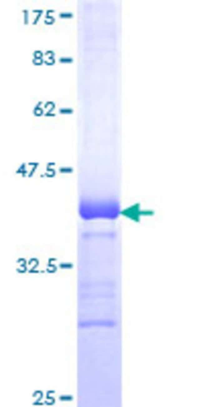 Abnova™Human POU6F2 Partial ORF (NP_009183, 2 a.a. - 87 a.a.) Recombinant Protein with GST-tag at N-terminal 25μg Abnova™Human POU6F2 Partial ORF (NP_009183, 2 a.a. - 87 a.a.) Recombinant Protein with GST-tag at N-terminal