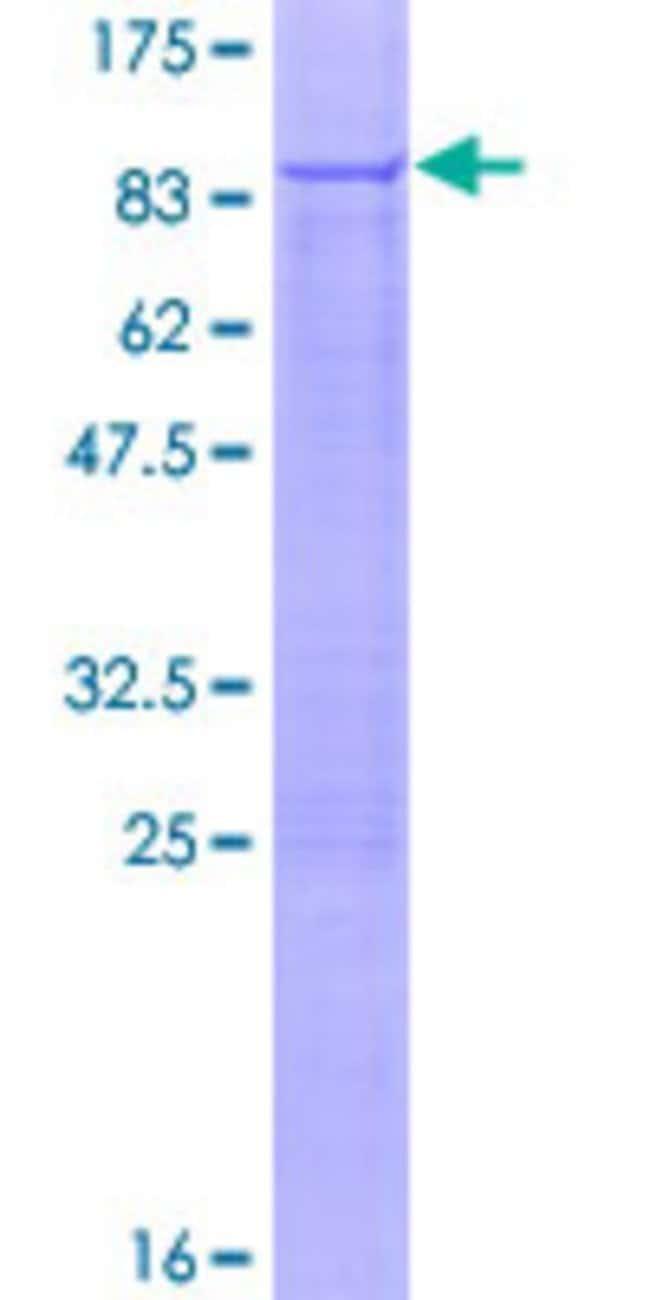AbnovaHuman PNKP Full-length ORF (NP_009185.2, 1 a.a. - 521 a.a.) Recombinant