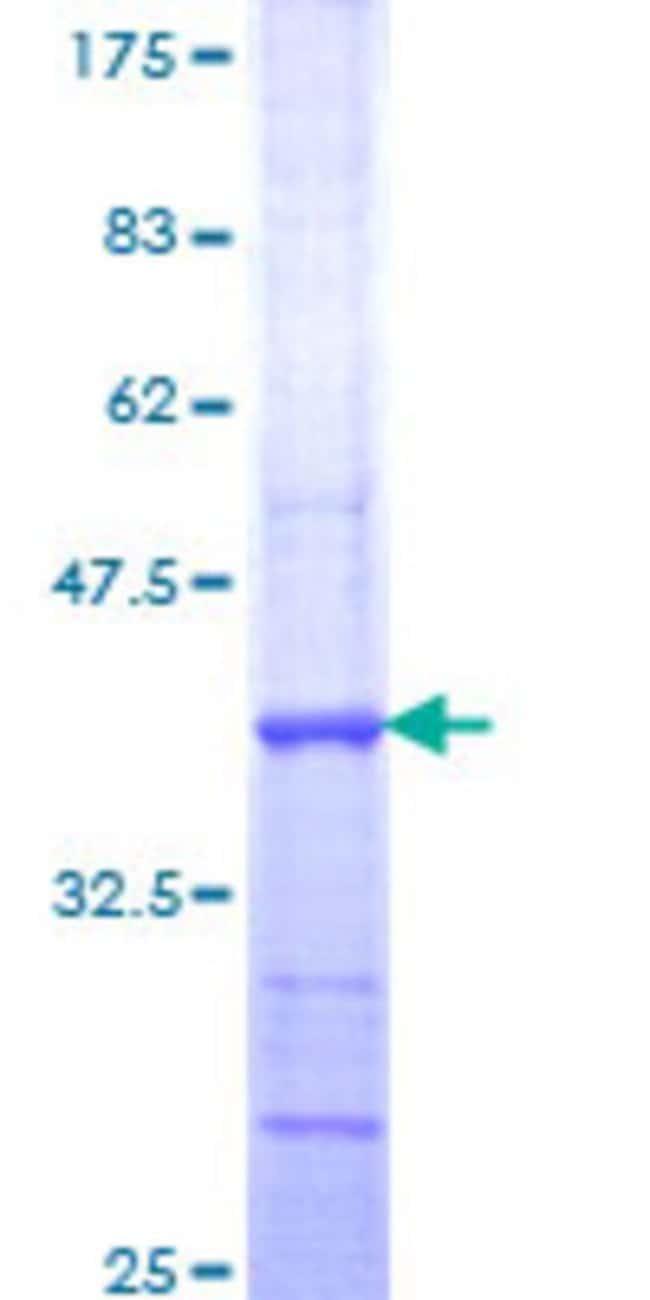 AbnovaHuman PNKP Partial ORF (NP_009185, 422 a.a. - 521 a.a.) Recombinant