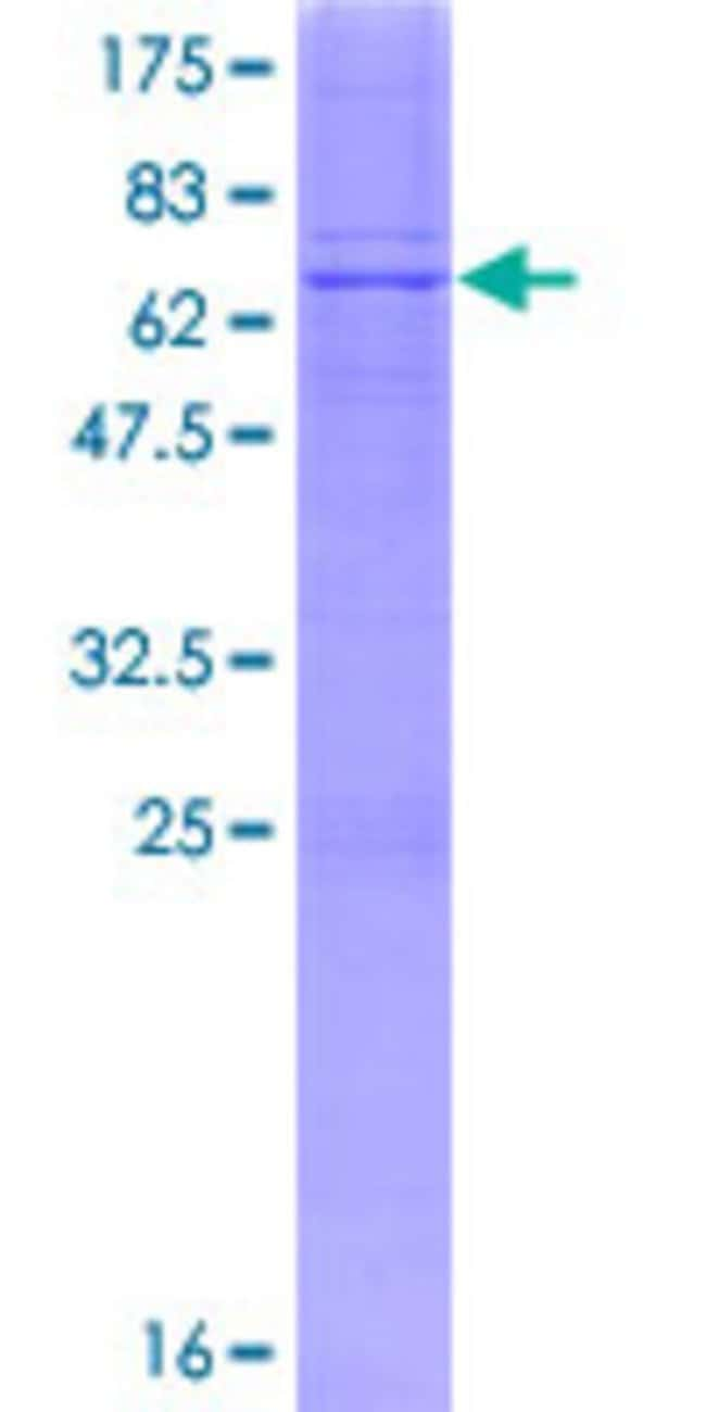 Abnova™Human B4GALT7 Full-length ORF (NP_009186.1, 1 a.a. - 327 a.a.) Recombinant Protein with GST-tag at N-terminal 10μg Abnova™Human B4GALT7 Full-length ORF (NP_009186.1, 1 a.a. - 327 a.a.) Recombinant Protein with GST-tag at N-terminal