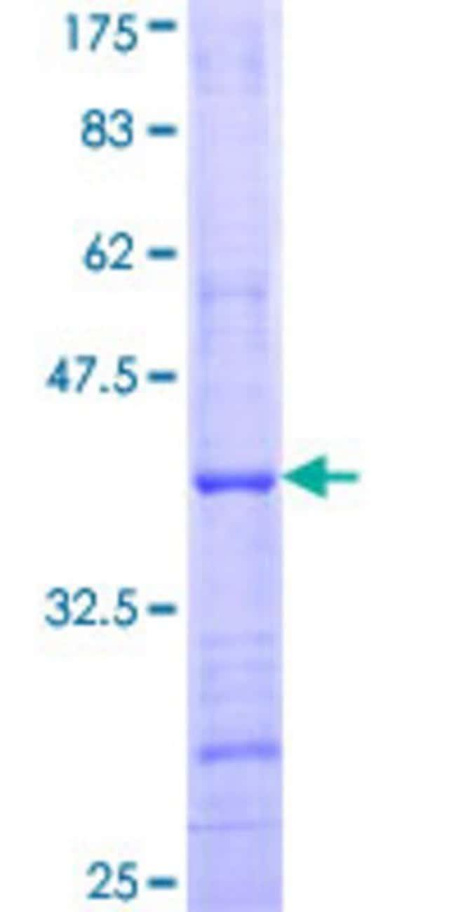 AbnovaHuman B4GALT7 Partial ORF (NP_009186, 194 a.a. - 293 a.a.) Recombinant