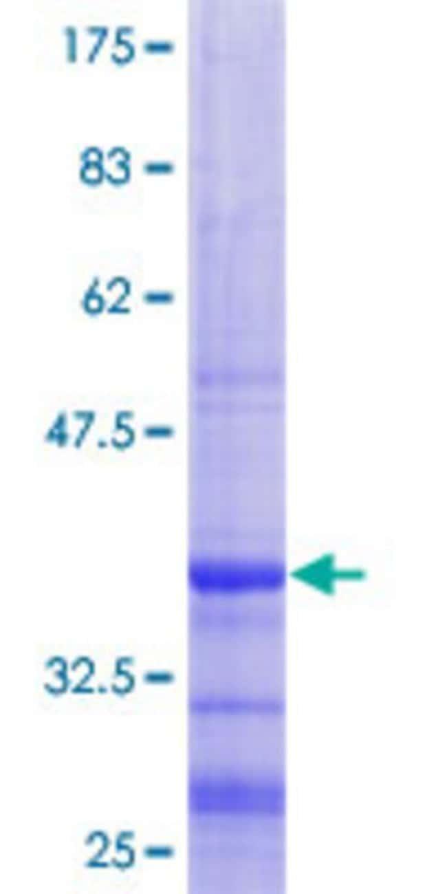 AbnovaHuman B4GALT7 Partial ORF (NP_009186.1, 51 a.a. - 140 a.a.) Recombinant