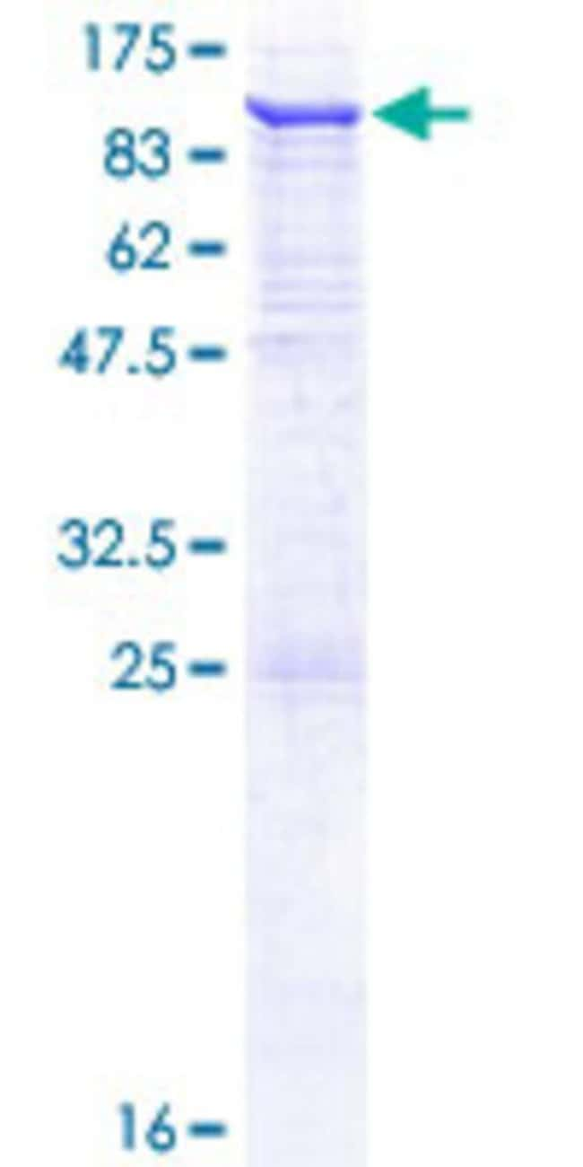 AbnovaHuman VPS45 Full-length ORF (NP_009190.2, 1 a.a. - 570 a.a.) Recombinant