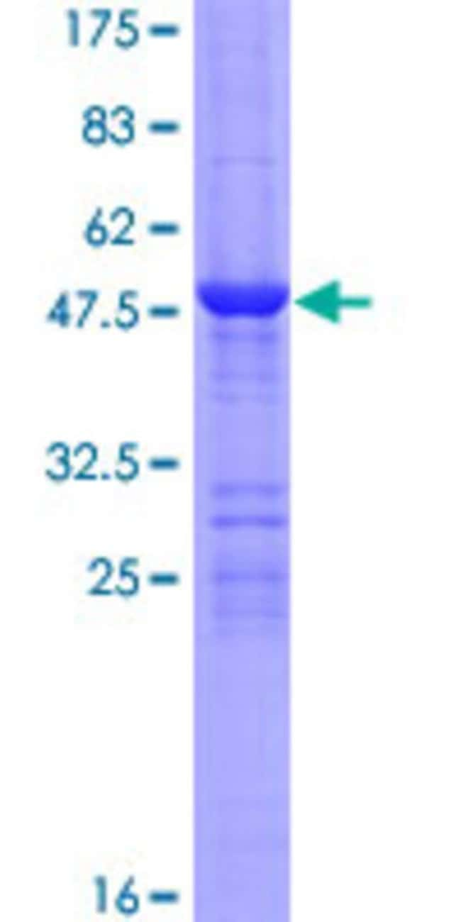 AbnovaHuman LYPLA2 Full-length ORF (NP_009191.1, 1 a.a. - 231 a.a.) Recombinant