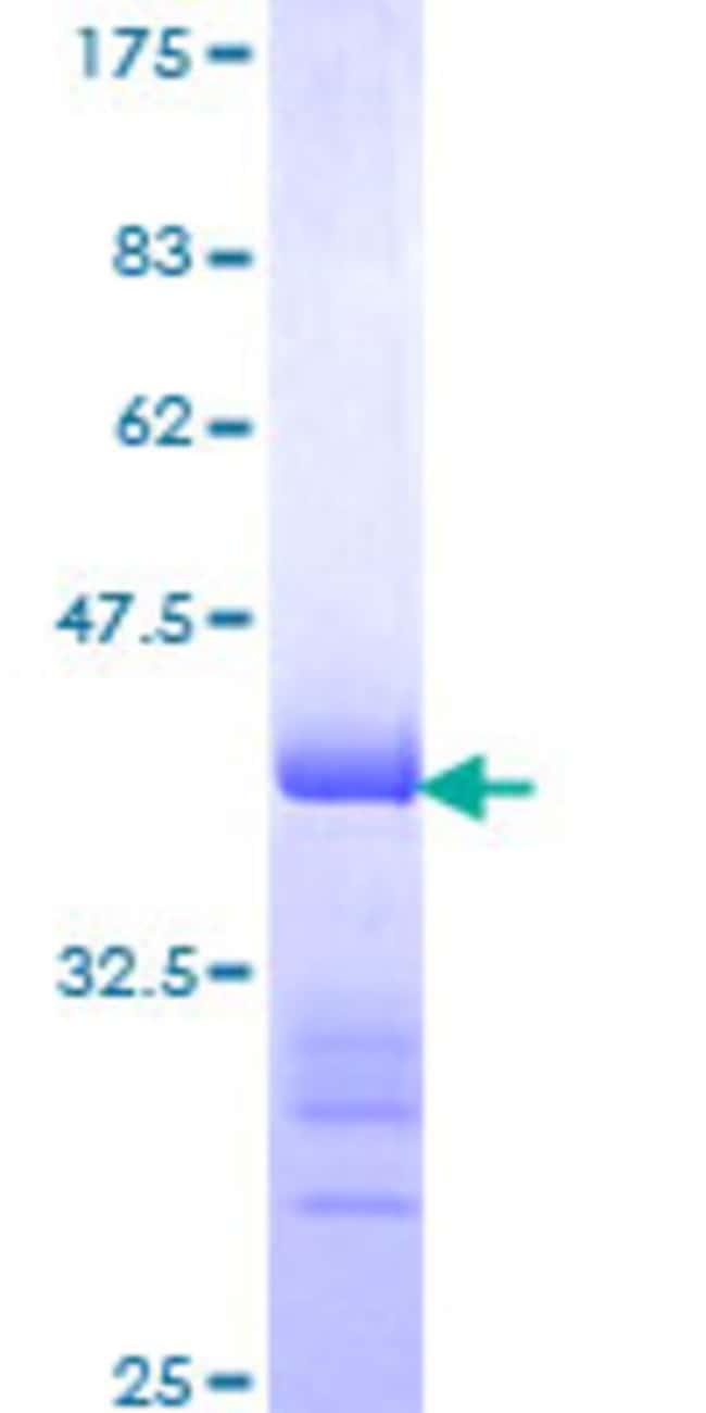 AbnovaHuman PARK7 Partial ORF (AAH08188, 1 a.a. - 100 a.a.) Recombinant