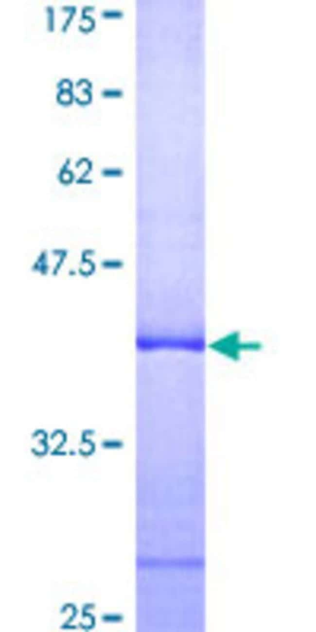 AbnovaHuman XAB1 Partial ORF (AAH07451, 9 a.a. - 118 a.a.) Recombinant