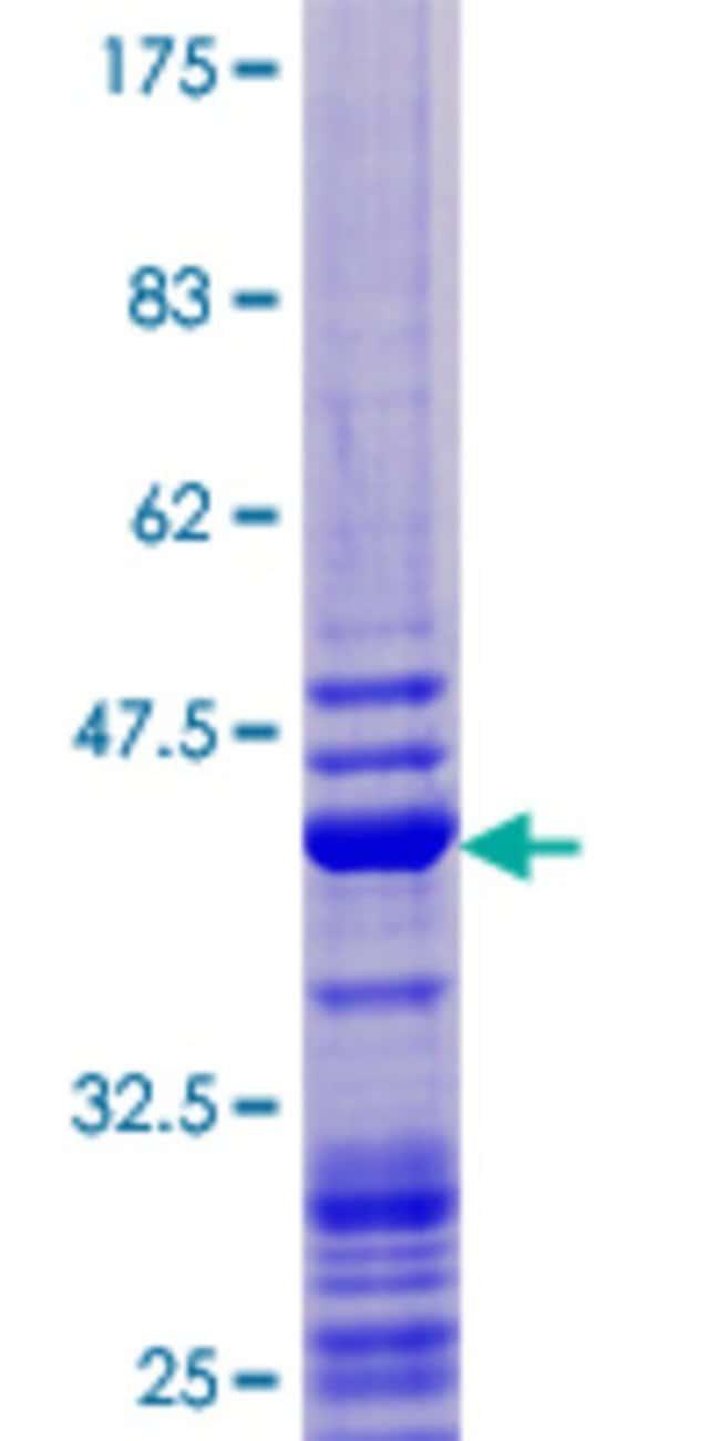 AbnovaHuman GABARAP Full-length ORF (NP_009209.1, 1 a.a. - 117 a.a.) Recombinant