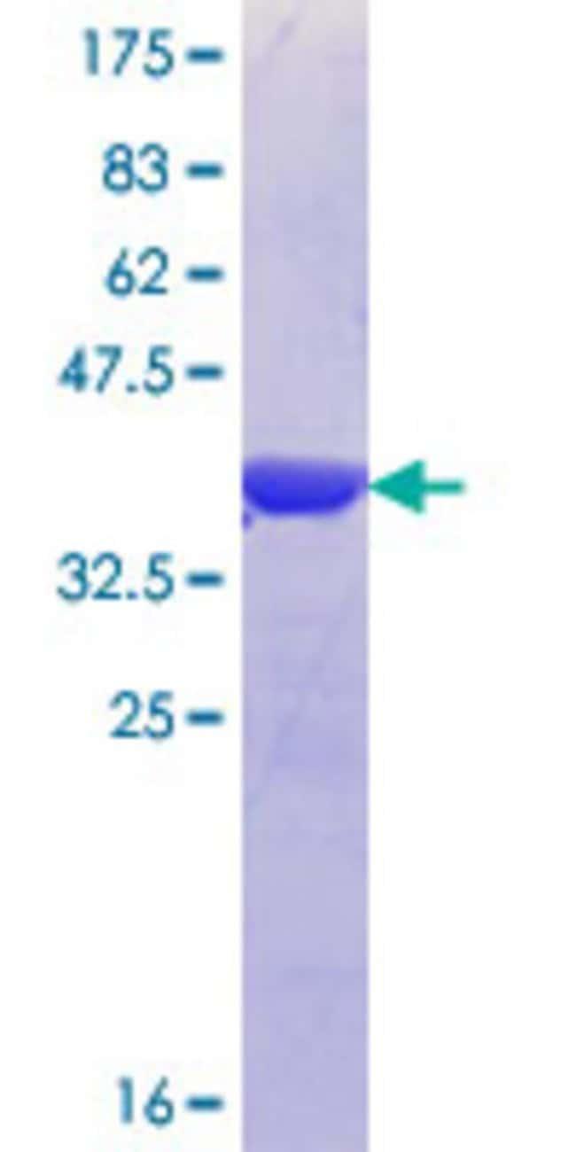 AbnovaHuman U2AF2 Partial ORF (NP_001012496.1, 141 a.a. - 240 a.a.) Recombinant