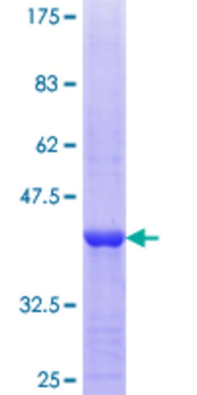 Abnova™Human EXOSC8 Partial ORF (NP_852480.1, 177 a.a. - 276 a.a.) Recombinant Protein with GST-tag at N-terminal 25μg Abnova™Human EXOSC8 Partial ORF (NP_852480.1, 177 a.a. - 276 a.a.) Recombinant Protein with GST-tag at N-terminal