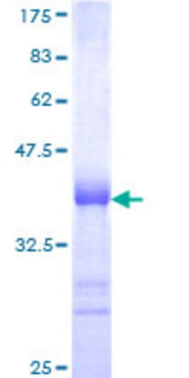 AbnovaHuman RNF13 Partial ORF (NP_009213, 51 a.a. - 150 a.a.) Recombinant