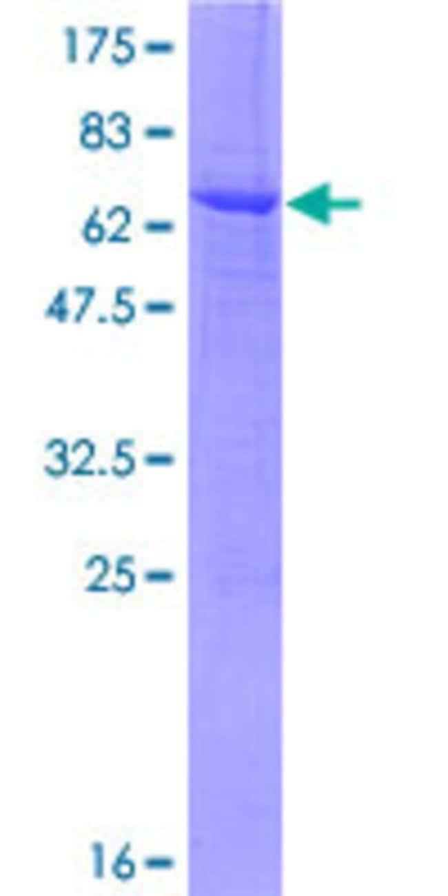 AbnovaHuman MGLL Full-length ORF (NP_009214.1, 1 a.a. - 313 a.a.) Recombinant