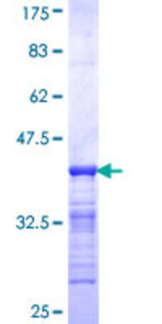 Abnova™Human ZNFN1A2 Partial ORF (NP_057344, 298 a.a. - 397 a.a.) Recombinant Protein with GST-tag at N-terminal 10μg Abnova™Human ZNFN1A2 Partial ORF (NP_057344, 298 a.a. - 397 a.a.) Recombinant Protein with GST-tag at N-terminal