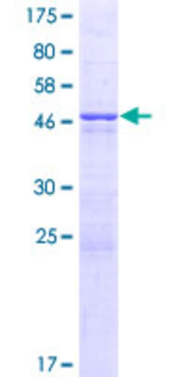 AbnovaHuman MRAS Full-length ORF (NP_001078518.1, 1 a.a. - 208 a.a.) Recombinant