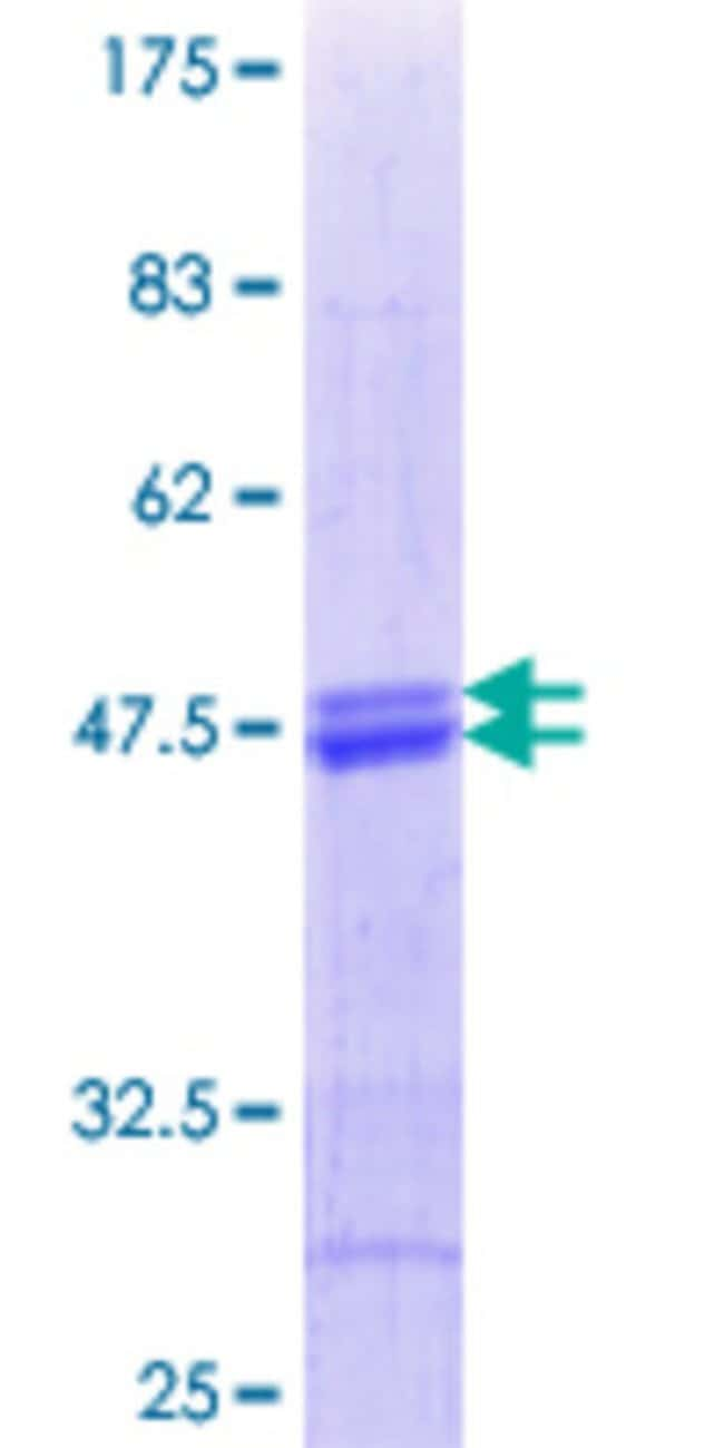AbnovaHuman ATF5 Partial ORF (AAH05174.1, 101 a.a. - 200 a.a.) Recombinant