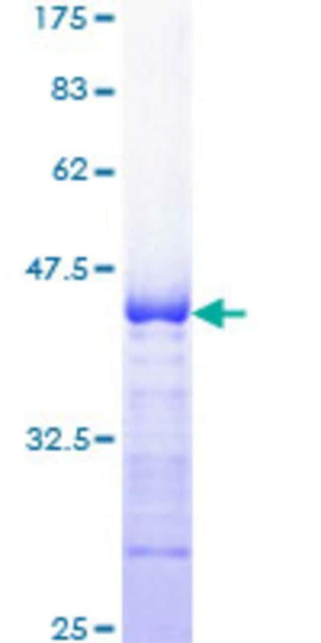 AbnovaHuman RASA3 Partial ORF (AAH47242, 725 a.a. - 834 a.a.) Recombinant