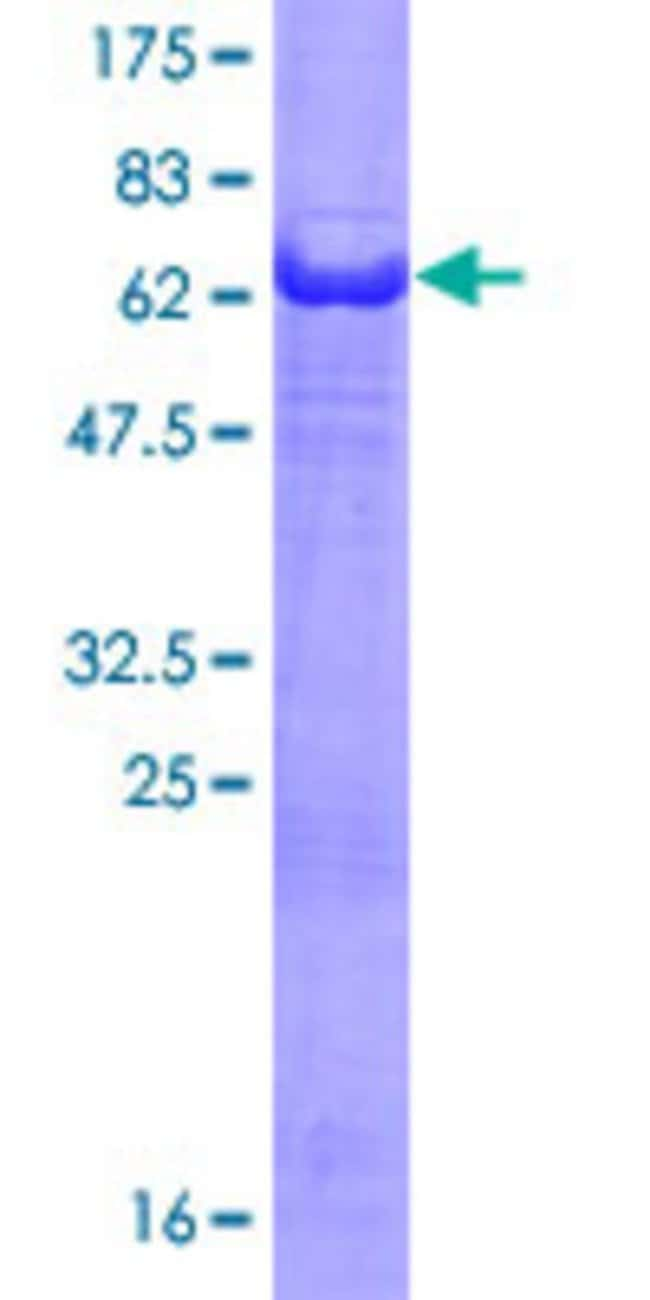 Abnova™Human PHLDA1 Full-length ORF (AAH18929.3, 1 a.a. - 259 a.a.) Recombinant Protein with GST-tag at N-terminal 25μg Abnova™Human PHLDA1 Full-length ORF (AAH18929.3, 1 a.a. - 259 a.a.) Recombinant Protein with GST-tag at N-terminal