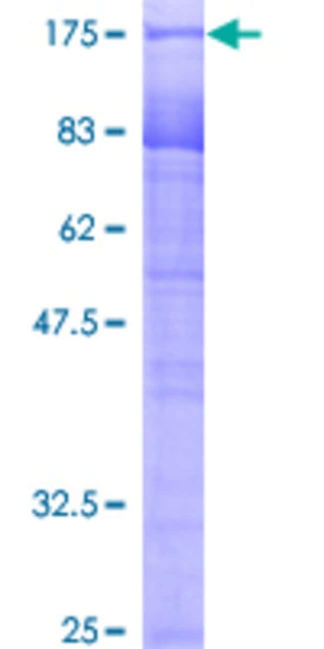 Abnova™Human SIAHBP1 Full-length ORF (AAH11979, 1 a.a. - 516 a.a.) Recombinant Protein with GST-tag at N-terminal 25μg Abnova™Human SIAHBP1 Full-length ORF (AAH11979, 1 a.a. - 516 a.a.) Recombinant Protein with GST-tag at N-terminal
