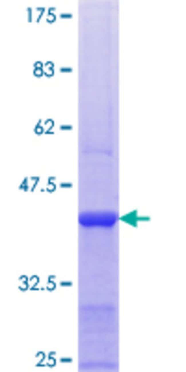 AbnovaHuman SIAHBP1 Partial ORF (NP_055096.2, 114 a.a. - 223 a.a.) Recombinant