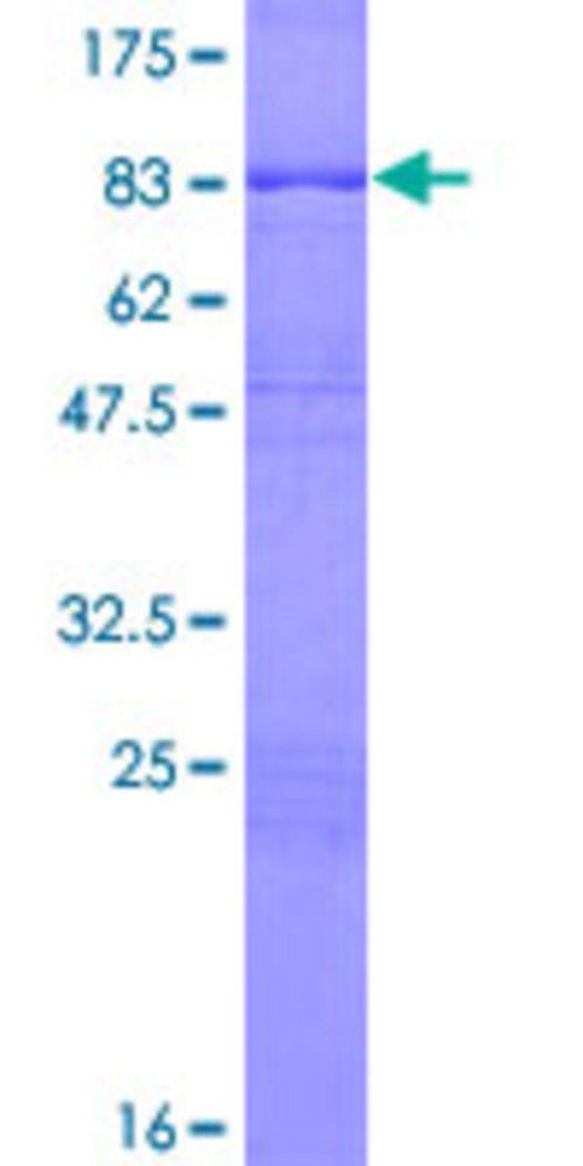 AbnovaHuman DLGAP4 Full-length ORF (NP_892118.1, 1 a.a. - 453 a.a.) Recombinant