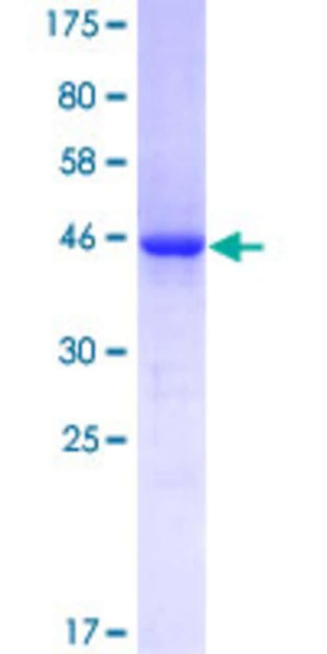 AbnovaHuman VASH1 Full-length ORF (AAH09031.1, 1 a.a. - 204 a.a.) Recombinant