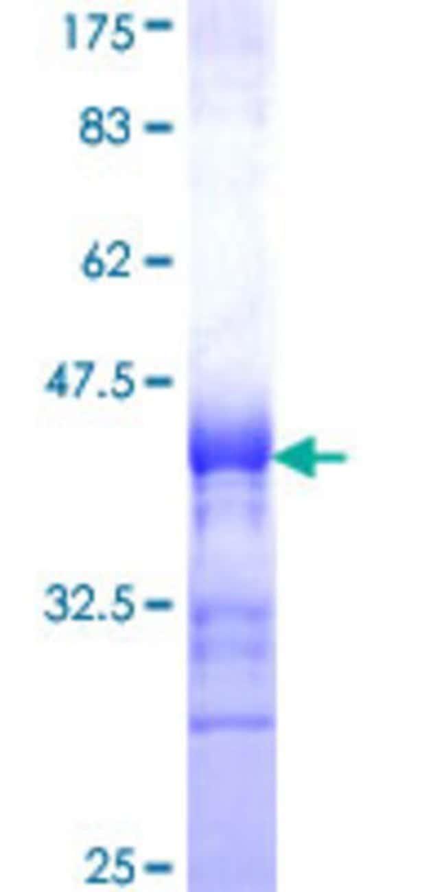 Abnova Human KIAA1036 Partial ORF (NP_055724, 3 a.a. - 100 a.a.) Recombinant
