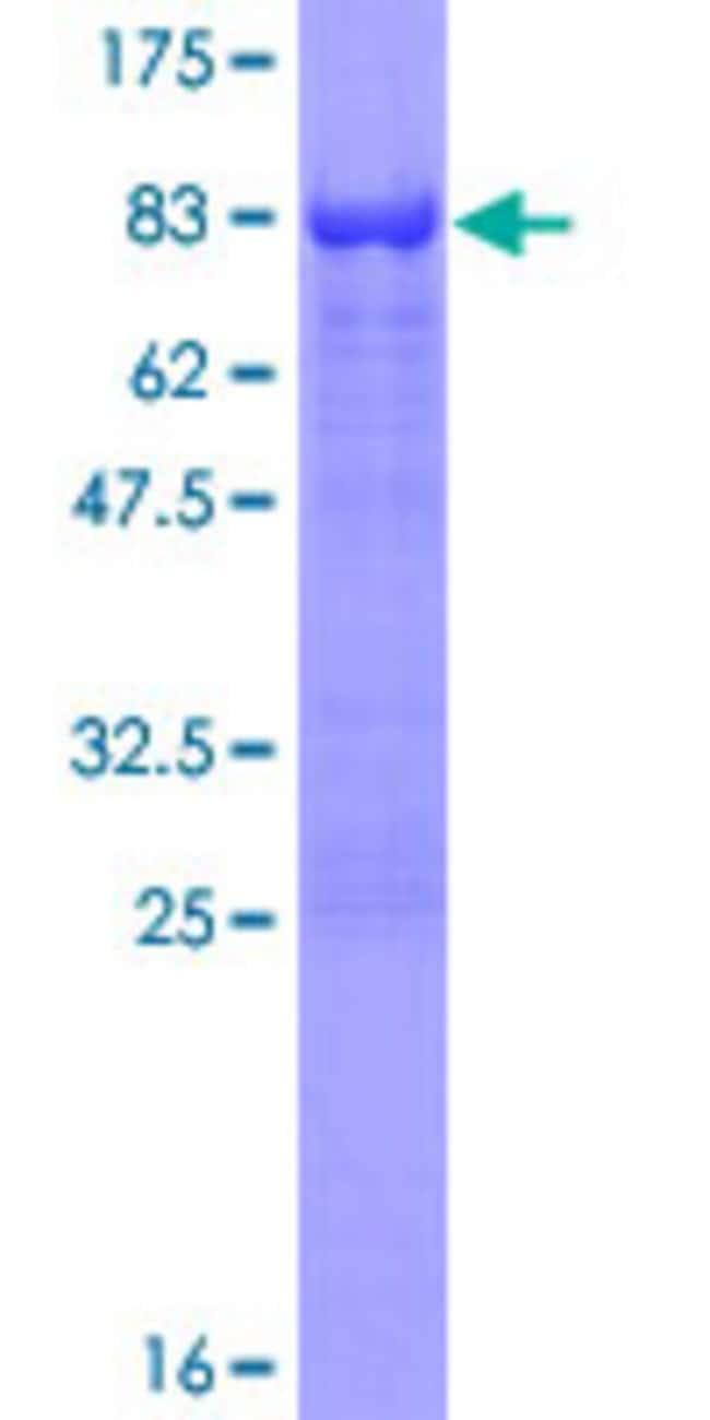AbnovaHuman AAK1 Full-length ORF (AAH02695.1, 1 a.a. - 474 a.a.) Recombinant