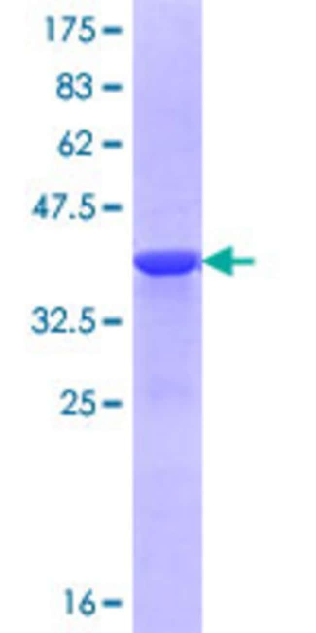 AbnovaHuman CHSY1 Partial ORF (NP_055733.2, 516 a.a. - 624 a.a.) Recombinant