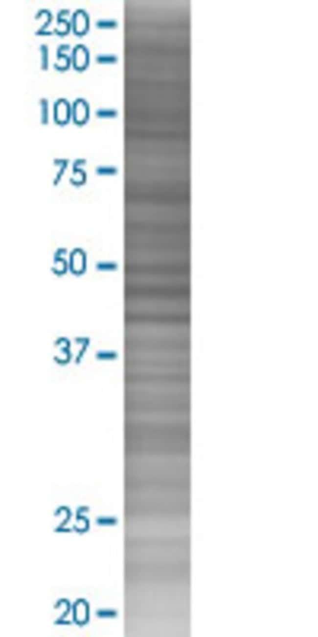 Abnova ICK 293T Cell Transient Overexpression Lysate (Denatured) 100µL:Life