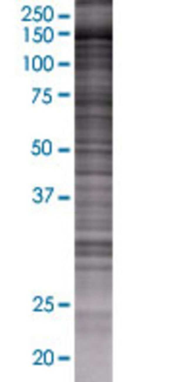 Abnova INPP5F 293T Cell Transient Overexpression Lysate (Denatured) 100µL:Life