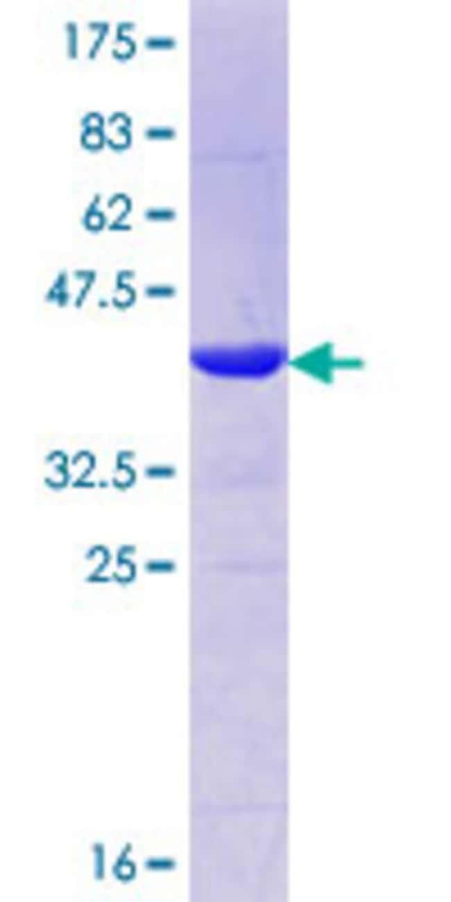 AbnovaHuman MLXIP Partial ORF (NP_055753.2, 481 a.a. - 577 a.a.) Recombinant
