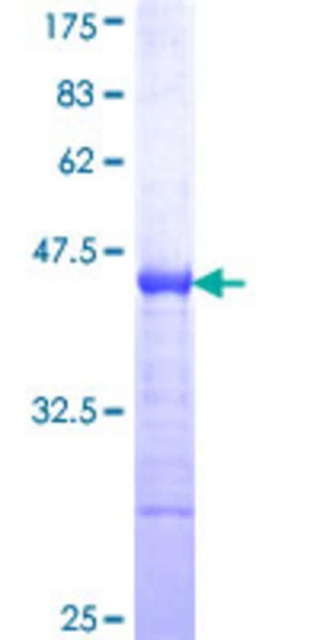 AbnovaHuman ZHX2 Partial ORF (NP_055758, 691 a.a. - 788 a.a.) Recombinant