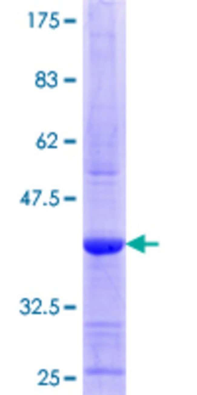 AbnovaHuman CLSTN1 Partial ORF (NP_001009566.1, 759 a.a. - 858 a.a.) Recombinant