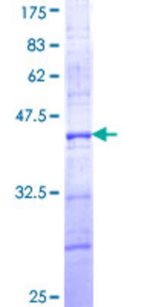 AbnovaHuman CARD8 Partial ORF (NP_055774, 322 a.a. - 431 a.a.) Recombinant